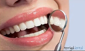Terrigal Dental - Cairns Dentist